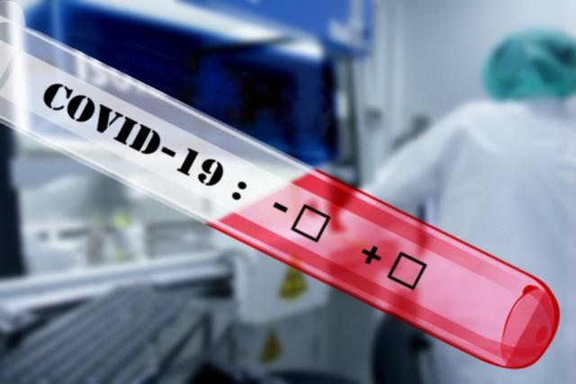 Κορωνοϊός: Τα πρώτα αποτελέσματα από το δωρεάν τεστ της DOCANDU